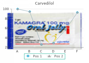 purchase 12.5mg carvedilol free shipping